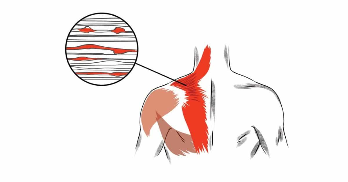 What is a Muscle Knot or a Trigger Point?